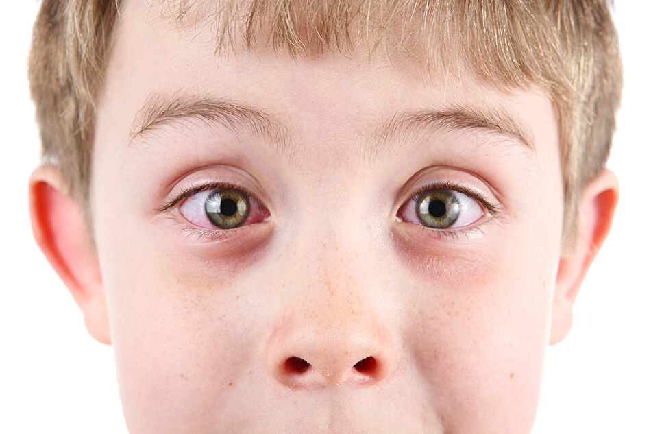 boy with pink eye