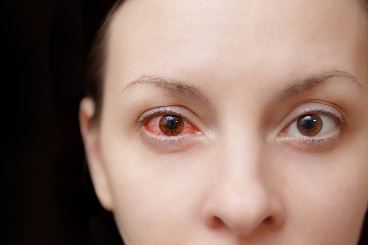 Close-up of woman with eye infection