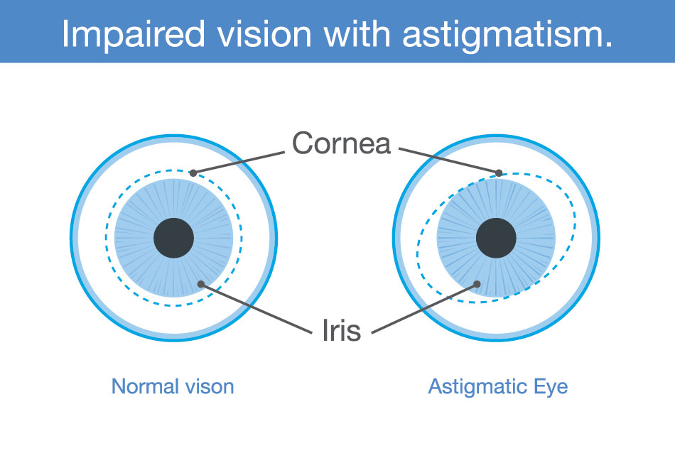 diagram showing impaired vision with astigmatism