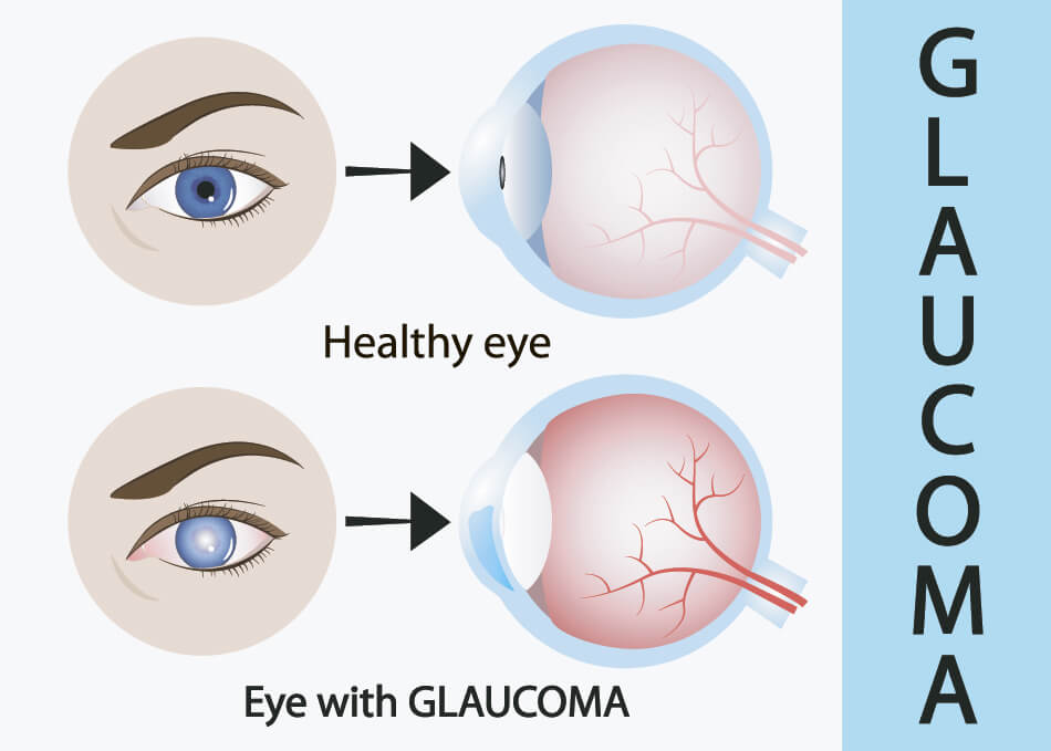 diagram of eyes with and without glaucoma