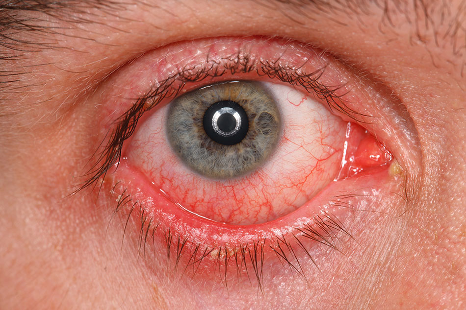 Close up eye infection