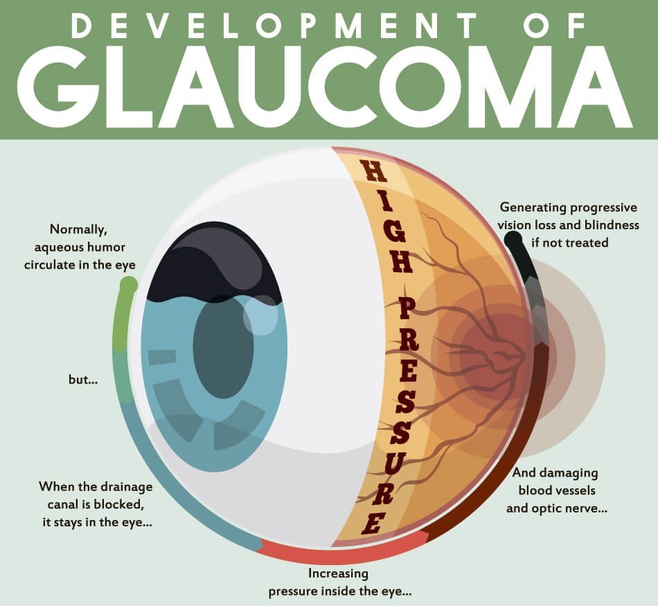 diagram explaining the development of glaucoma