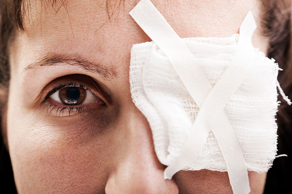 Woman with eye injuries, patch of taped gauze on eye